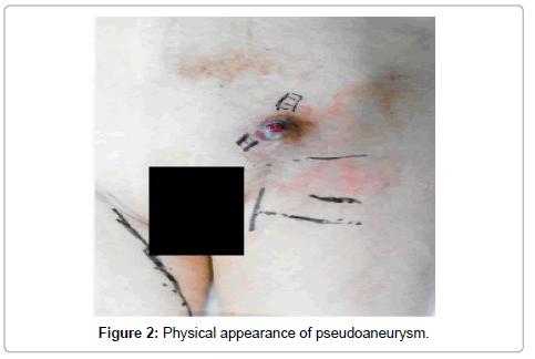 vascular-medicine-surgery-pseudoaneurysm