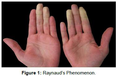 vascular-medicine-surgery-raynaud-phenomenon