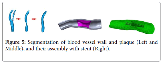 vascular-medicine-surgery-segmentation-blood-vessel