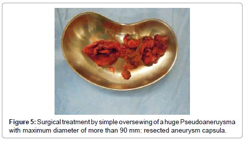 vascular-medicine-surgery-surgical-aneurysm-capsula
