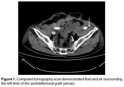 vascular-medicine-surgery-tomography-scan-fluid