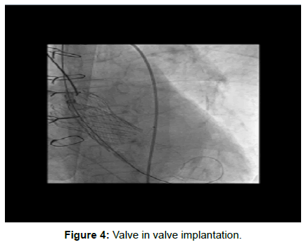 vascular-medicine-surgery-valve-implantation