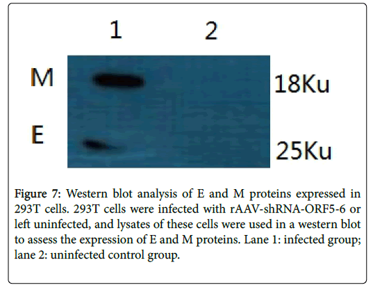 virology-mycology-Western-blot-analysis