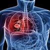 Advances in Alternative Lung Cancer Treatment