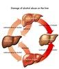 Alcoholism Disease