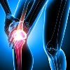 Arthritic Disease
