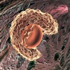Bone Marrow Disease/Disorders