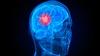 Brain Cancer Diagnosis