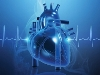 Cardiovascular Radiology
