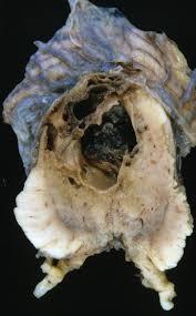 Central nervous system vasculitis
