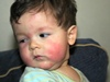 Clinical Pediatrics Allergy