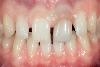 Dental Debonding