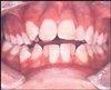 Dental Malocclusion