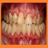 Dental Plaque