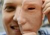 Facial Prosthesis