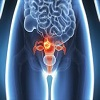 Gynecologic Cancers