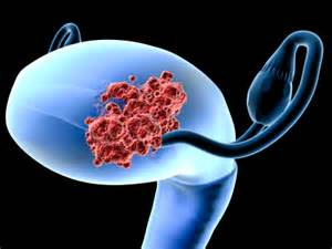 Gynecological Cancers