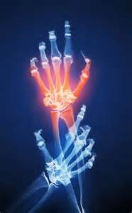 Joint Replacement: Treatment of Arthritic Disease