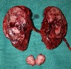 Kidney Cancer Surgery