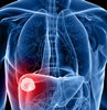 Liver Cancer Clinical Trials