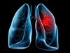 Lung Cancer Case Reports