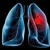 Lung Cancer Clinical Trials