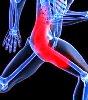 Muscle Hyperalgesia