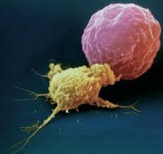 Neuroblastoma Cancer