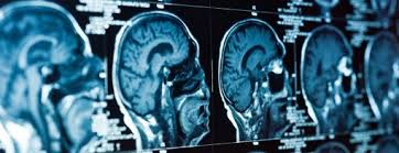 Neurology case reports