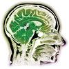 Neuronal processing