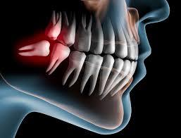 Oral and Maxillofacial treatments