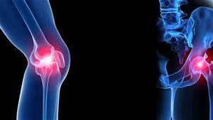 Orthopaedic Trauma Surgery