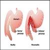Pancreas Pain