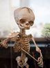 Pediatric Osteology