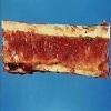 Red Bone Marrow