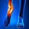 Rheumatoid Foot Reconstruction