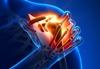 Rheumatology Case Reports