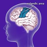Rolandic Epilepsy