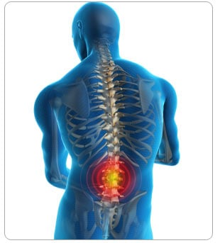 Spine Tumour