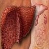 Steatohepatitis