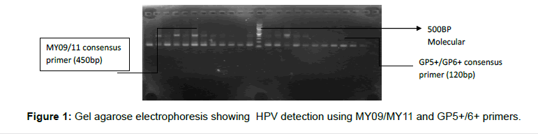 Clinical-Medical-HPV-detection