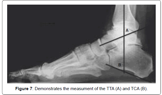 Foot-Ankle-demontrates-measument