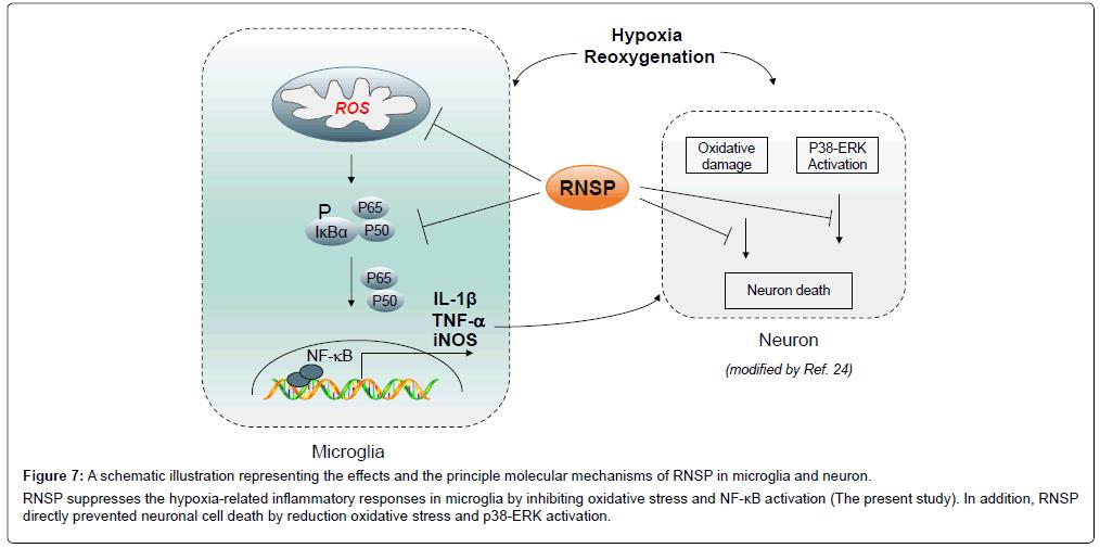 alzheimers-disease-parkinsonism-schematic