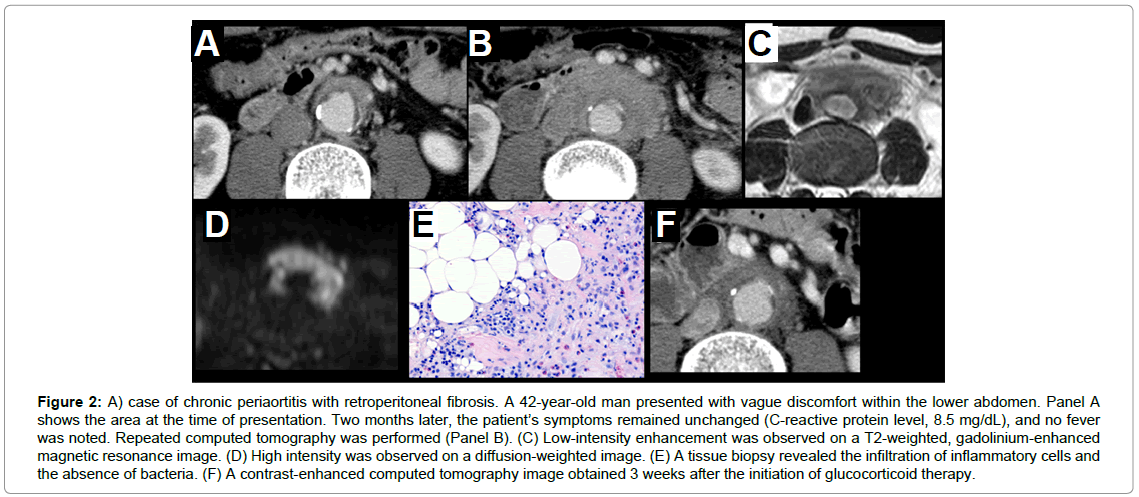 angiology-case-chronic-periaortitis-with-retroperitoneal-fibrosis