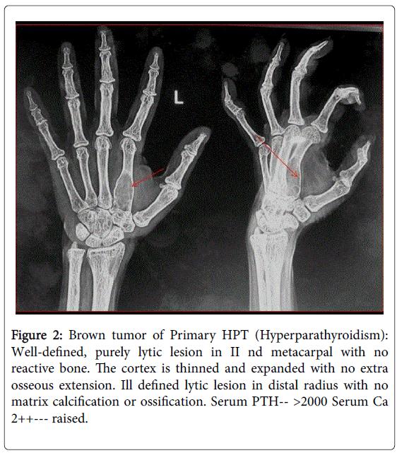 arthritis-Brown-tumor-Primary