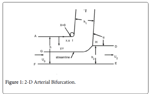 atherosclerosis-Arterial-Bifurcation