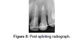 bioceramics-development-applications-Post-splinting