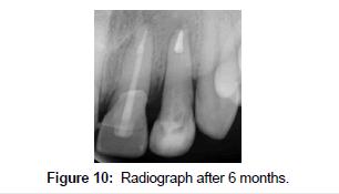 bioceramics-development-applications-Radiograph