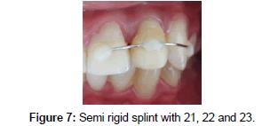 bioceramics-development-applications-Semi-rigid-splint