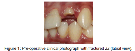 bioceramics-development-applications-clinical-photograph
